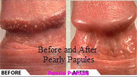 Pearly Papules Medication - What Method To Choose - YouTube