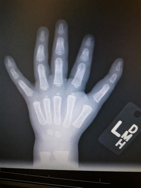 Polydactyly of Hand - Hand - Orthobullets